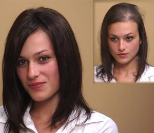 Hair Replacement for Women Choices