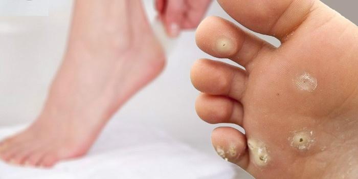 Get Rid Of Corns on Feet Naturally