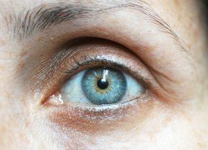 James Daniel Carpenter   Eyelid Surgery