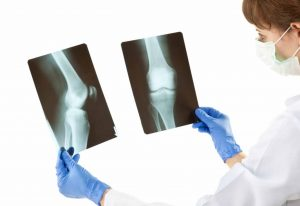 Orthopedist in Navi Mumbai