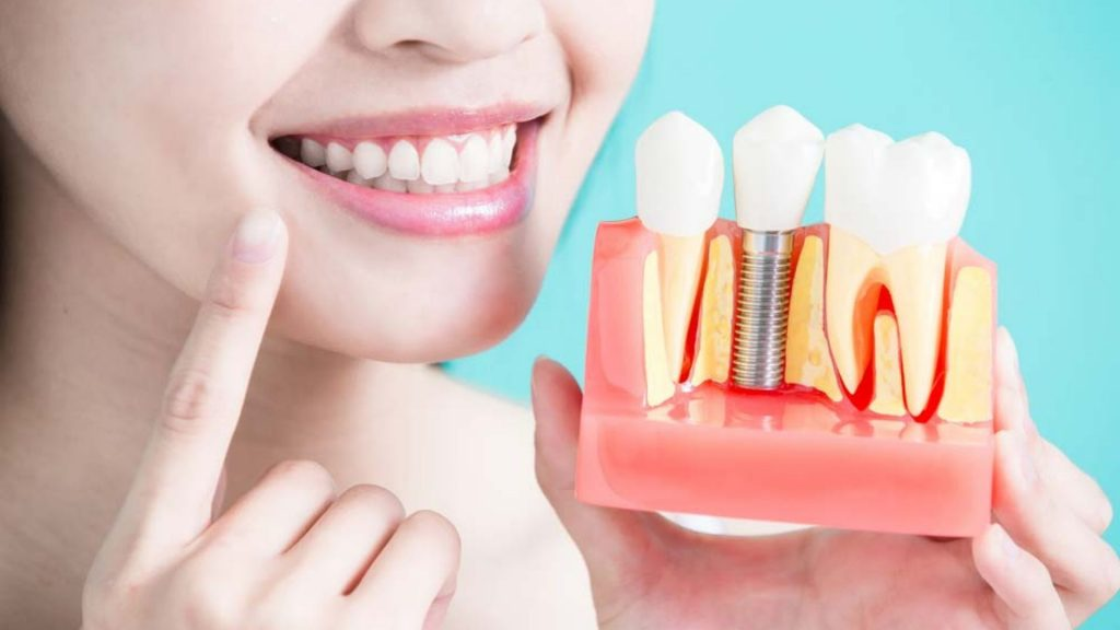 dental implant (2)