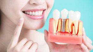 dental implant (2)