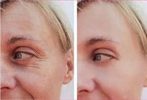 Wrinkle Injections treatment