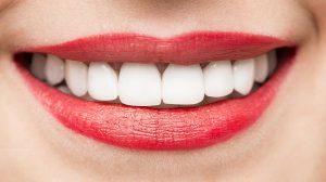 Treating Lip Lines