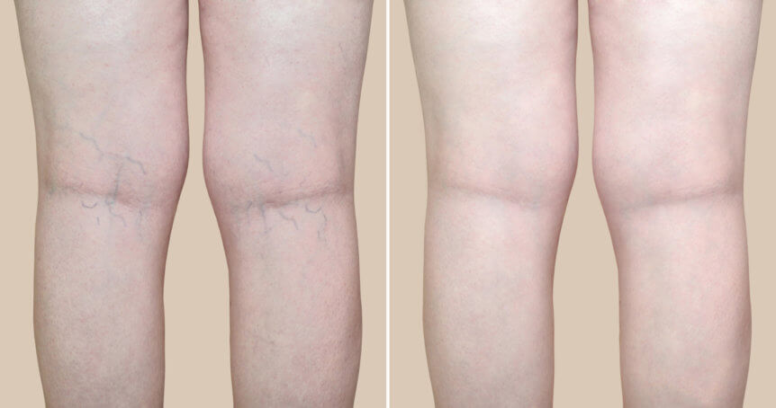 Laser vein treatment