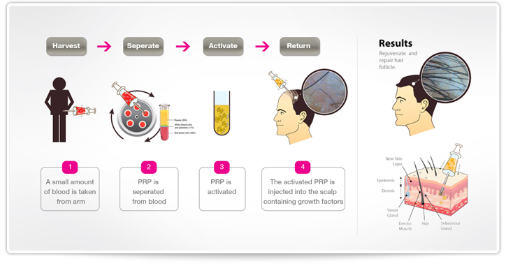 how-prp-works