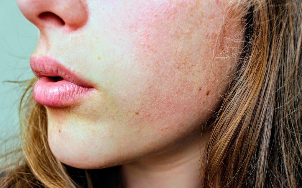 Eczema, and Dry Skin