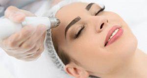 Laser Resurfacing Treatment