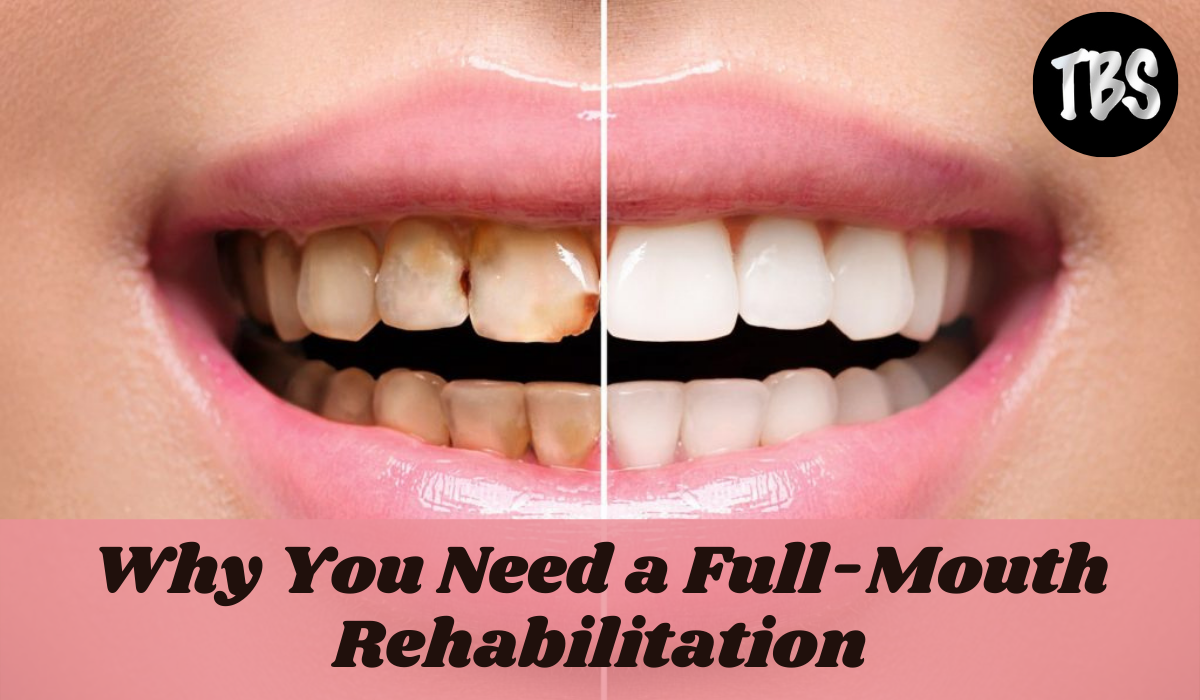 Mouth Rehabilitation