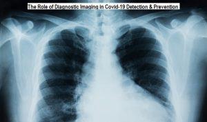 Diagnostic Imaging in Covid-19
